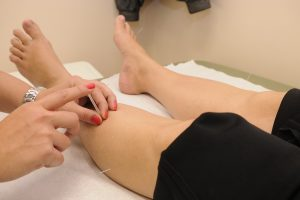 acupuncture, needles, dry needling